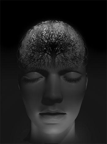 [ENC069] Reducción de Cerebro
